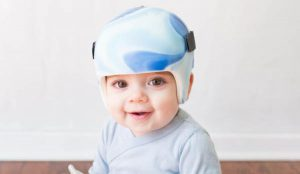 Craniosynostosis Treatment in Delhi