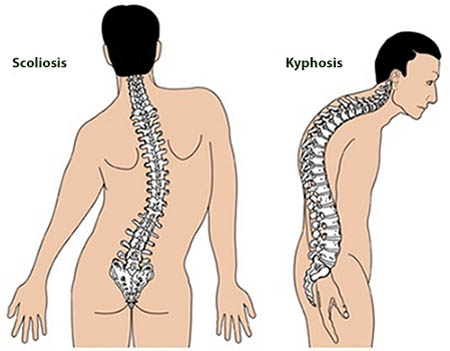 Treatment for Spinal Tuberculosis in Delhi