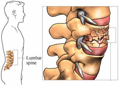Treatment for Compression Fracture of The Spine in Delhi